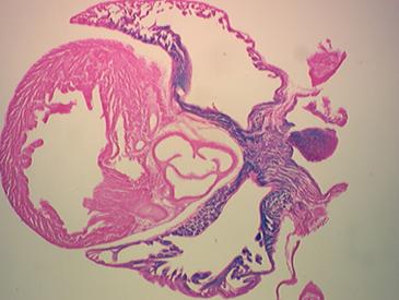 Cardiovascular Stem Cells   UCLA Broad Stem Cell Center