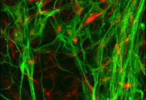 """Stem Cell Researcher Receives Stem Cell """"Bank"""" Initiative Grant"""