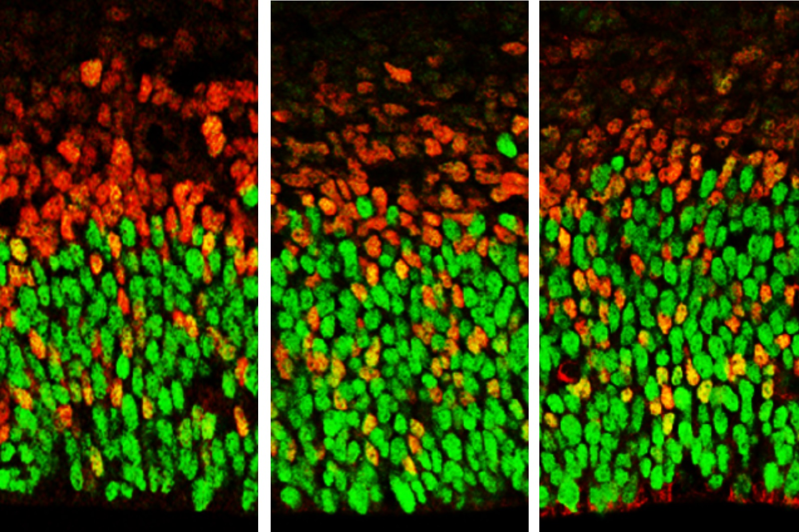 Image showing brain cells with lower levels of Foxp1 function (at left) and higher levels (right). Apical radial glia are stained in green and secondary progenitors and neurons stained in red.
