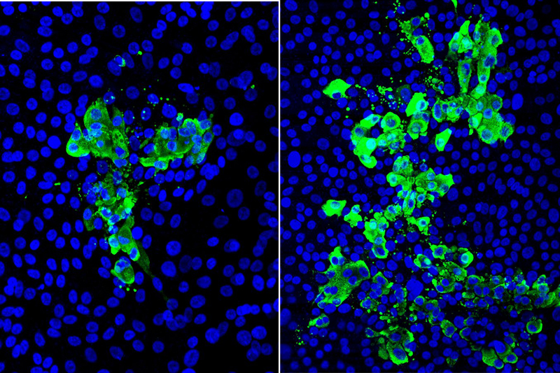 Microscopic images of human stem cell–derived airway tissue models