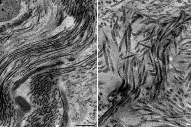 healthy scar containing collagen type 5 (left) and unhealthy scar containing no collagen type 5