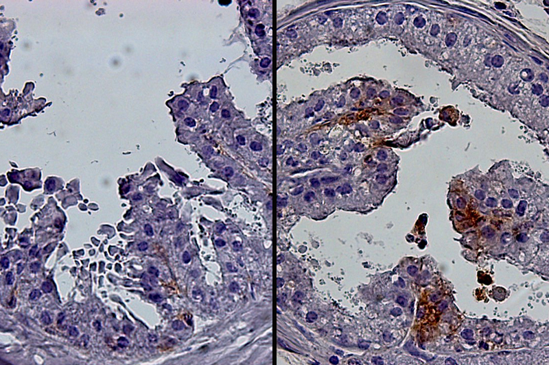 cellular image comparison of young and old mouse prostate