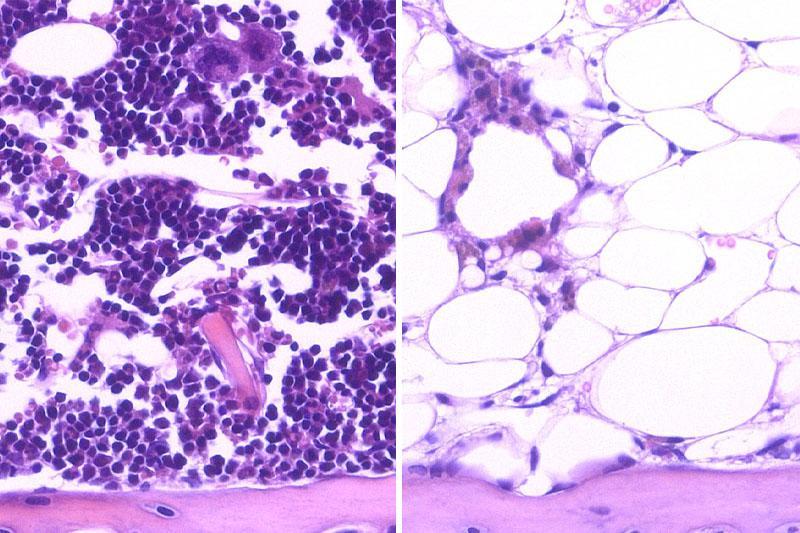 blood cells (purple) regenerated in the bone marrow