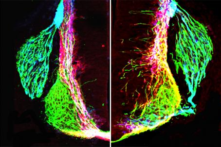 removing netrin1 results in highly disorganized axon growth.