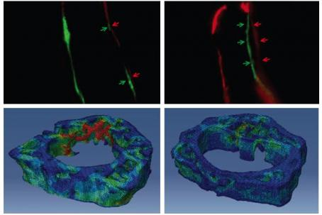 NELL-1 effect on mouse bone