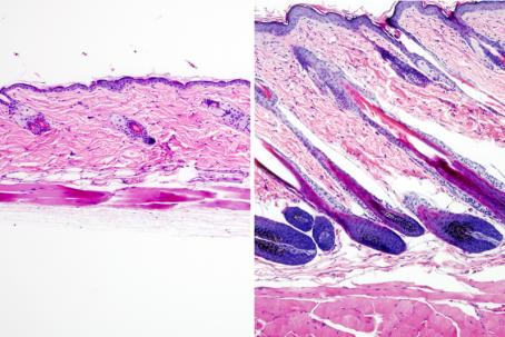 Untreated mouse skin showing no hair growth (left) compared to mouse skin treated with the drug UK5099 (right) showing hair growth
