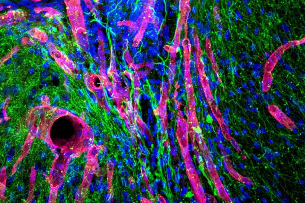 hydrogel helps tissue growth in mouse brain