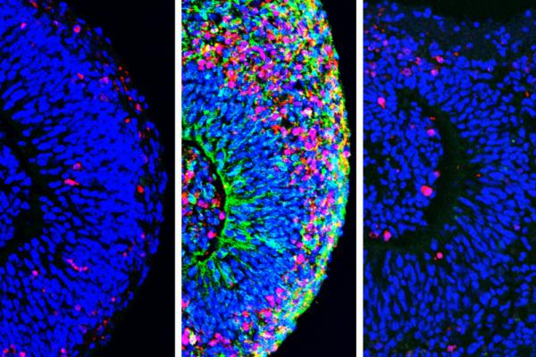 Organoid brain tissue before (left) and after (center) exposure to Zika virus, and then after treatment with drugs (right). Zika infection (green) leads to widespread cell death (magenta), but the drugs effectively reduced infection and neural tissue death.