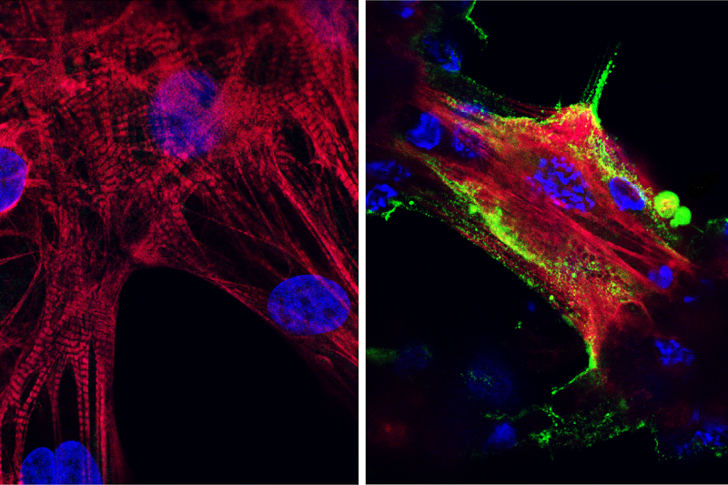 Microscope images of healthy heart muscle cells (right) and heart muscle cells infected by SARS-CoV-2