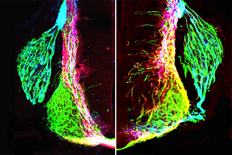 Left: axons (green, pink, blue) form organized patterns in the normal developing mouse spinal cord. Right: removing netrin1 results in highly disorganized axon growth.
