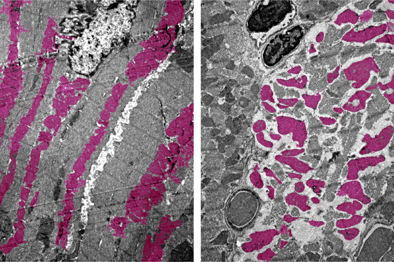 Heart Muscle Cells