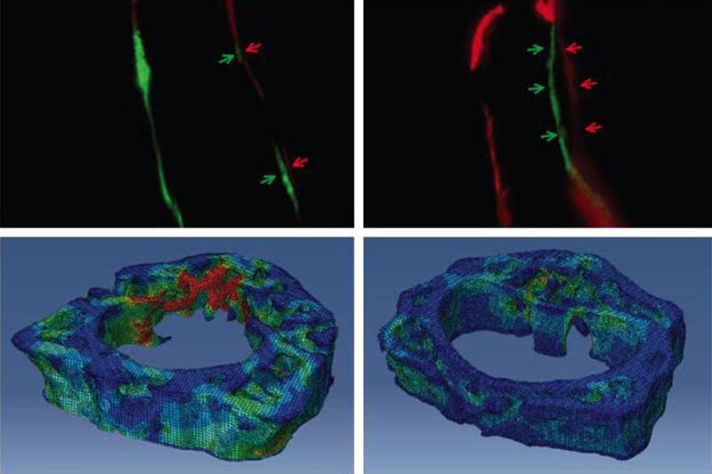 NELL1 effect on bone