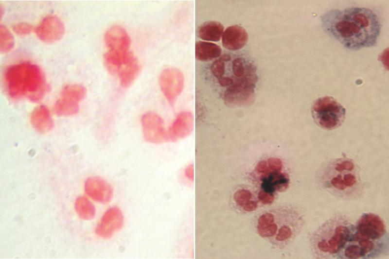 before and after gene therapy cell comparison image