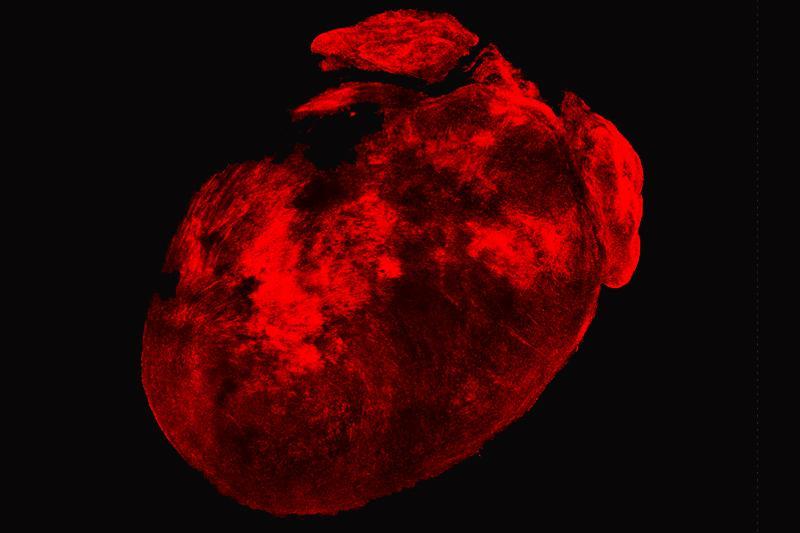 cardiac fibroblasts