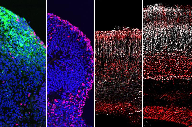Zika virus (green) infects and destroys the formation of neurons (pink) in human stem cell-derived brain organoids. Administration of 25HC blocks preserves brain size and structure.