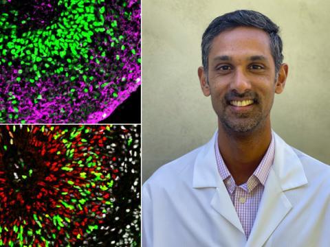 Dr. Samarasinghe organoids