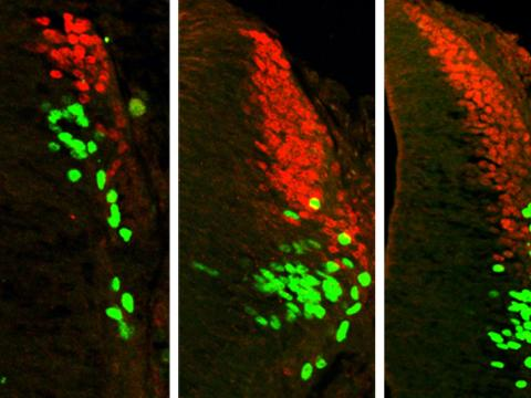 Increasing the concentration of a certain type of BMP increases the production of the same categories of sensory interneurons (red and green). Left: no BMP added; center: 1x BMP added; right: 10x BMP added.