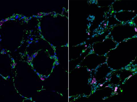 3-D bioengineered lung-like tissue (left) resembles adult human lung (right).