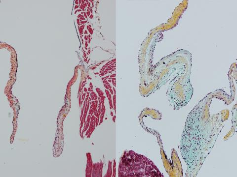 Microscopic images of normal and abnormal heart valves