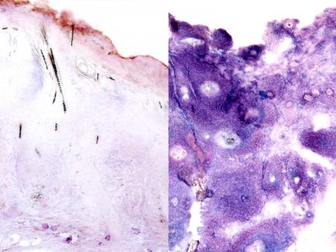 tumor comparison showing lactate dehydrogenase activity