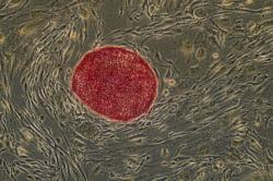 Stem Cell Researchers reprogram normal tissue cells into cells with the same pro